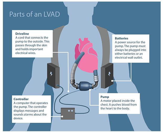 Left Ventricular Assist Device – Colorado Program for Patient ...